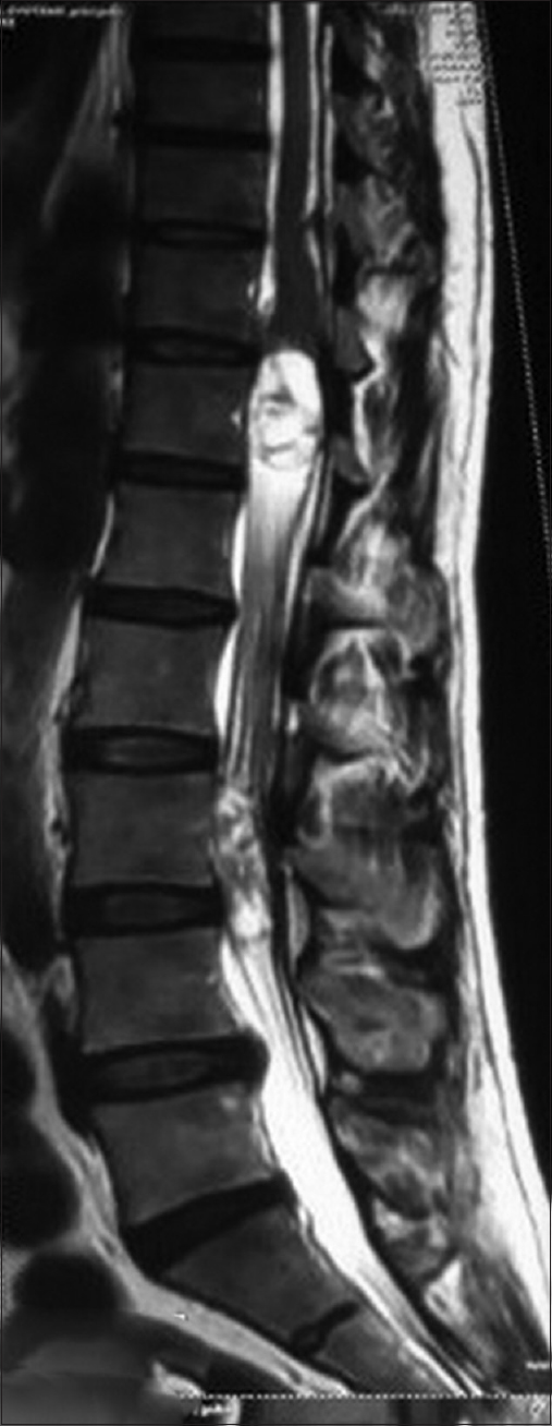 Figure 3: Preoperative MRI spine T2WI (sagittal) suggestive of two mass lesions at D12 and L3–L4 levels (in 2017)