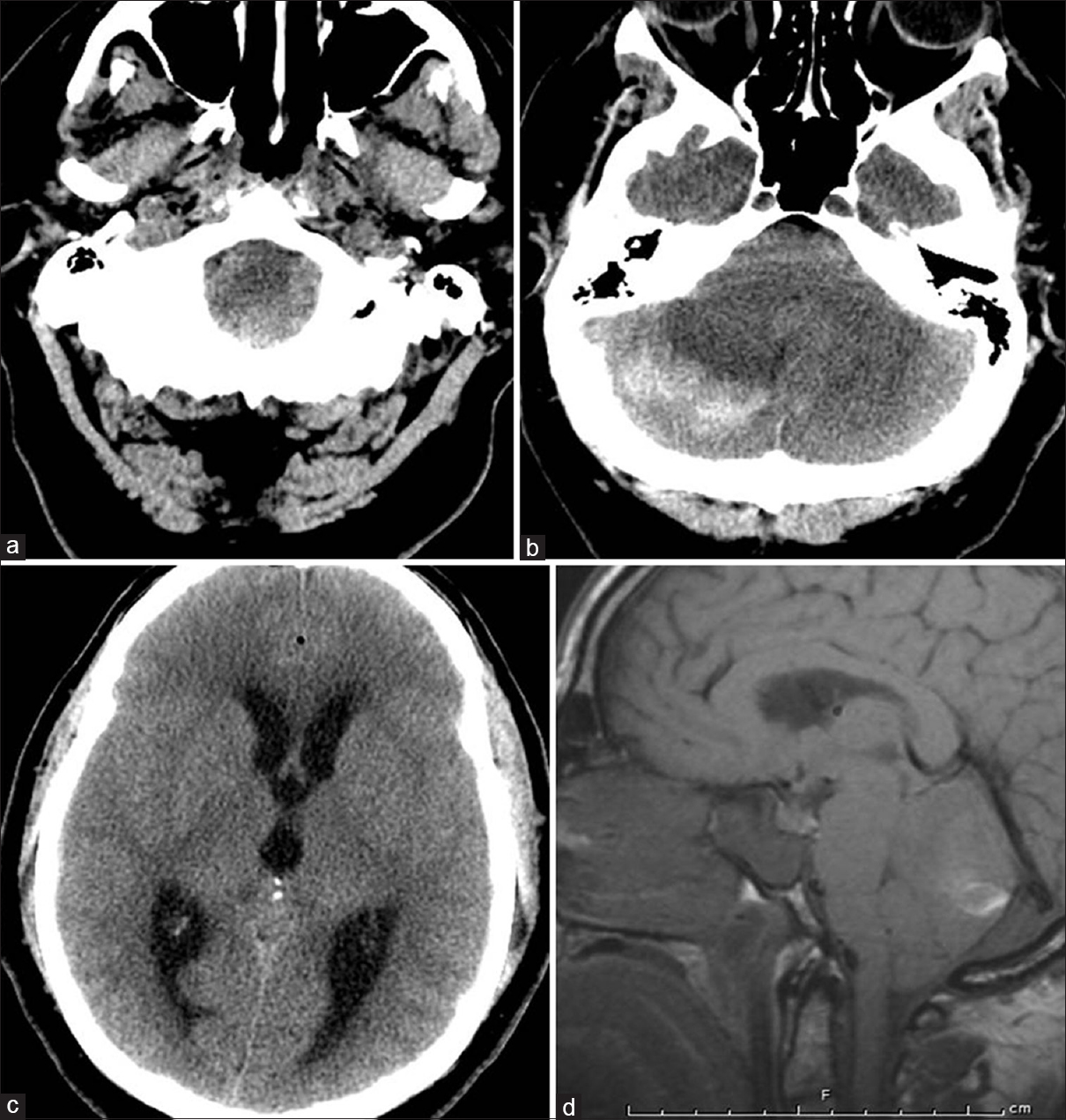 Figure 5: (a) Computed tomography head showing fullness of foramen magnum. (b) Computed tomography head showing posterior fossa hemorrhage. (c) Computed tomography head showing hydrocephalus. (d) Magnetic resonance imaging brain sagittal cut revealing tonsillar descent